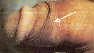 Photo of ridged band